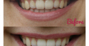 15 Amazing Home Remedies to Remove Tartar and Plaque From Teeth - Wellness and Health Blog